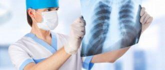 В Китае развивается новый вид неизвестной пневмонии